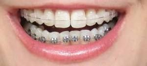 clear_braces 2