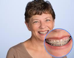 clear_braces 4